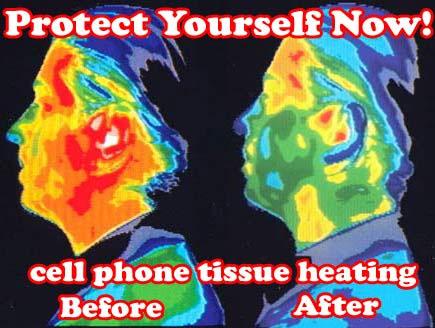 Image result for Death em radiation